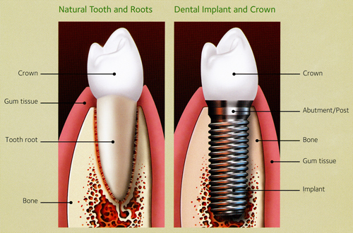 Dental implants-side view comparing natural tooth to implant